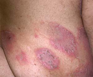 scratch marks on skin